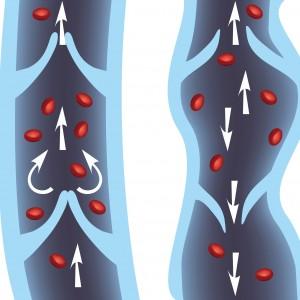 maladie veines